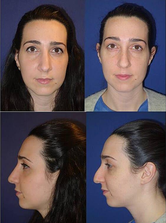 ניתוח אף אישה תמונות