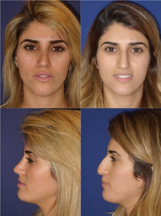 תוצאות ניתוח אף 3