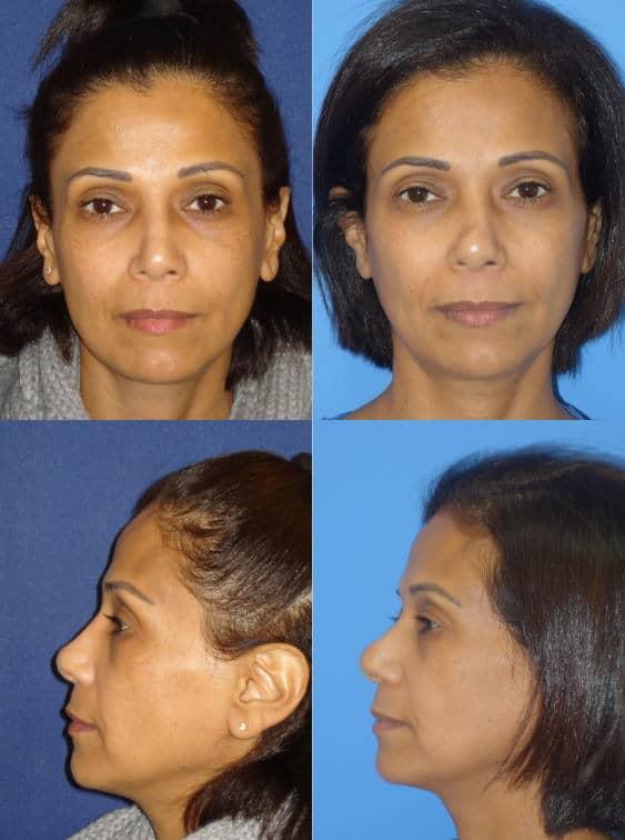 ניתוח אף תוצאות לפני ואחרי 2